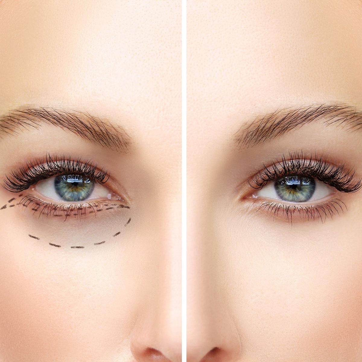 Blepharoplasty(surgery-of-eyelids-)