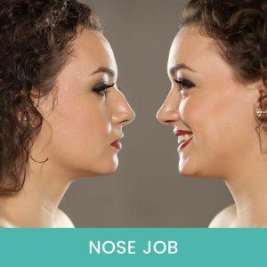 Nose-Job-Dubai-UAE