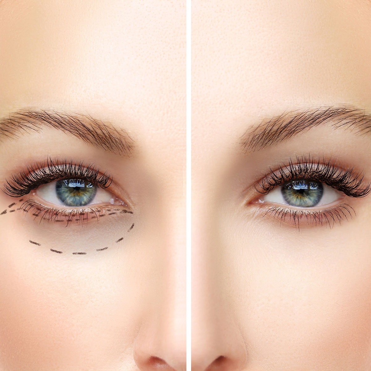 Blepharoplasty(surgery-of-eyelids-)