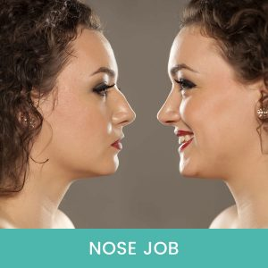 Nose-Job-Dubai-UAE