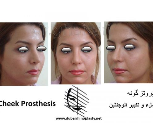 Cheek Prosthesis Before After