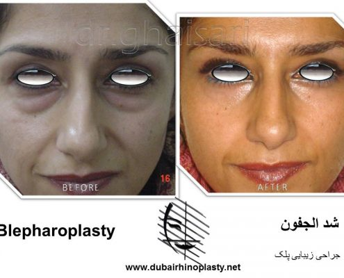 Blepharoplasty Before After